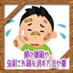顔の傷跡や虫刺され跡を消す方法や薬!しこりの治療法は?