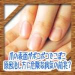 爪の表面がボコボコでこぼこ!原因治し方に危険な病気の前兆?