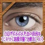 白目がぶよぶよ充血の原因はコンタクトに結膜浮腫?治療法について